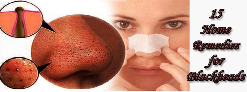 15 Home Remedies for Blackheads | Fast Home Remedies