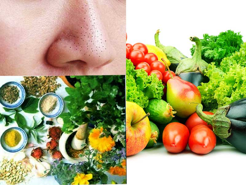 Remedies for Blackheads
